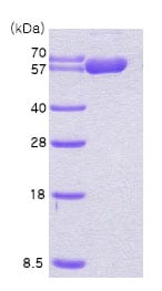 SDS-PAGE - Recombinant Human Hsp60 protein (ab78792)