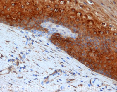 Immunohistochemistry (Formalin/PFA-fixed paraffin-embedded sections) - Anti-Hsp27 antibody (ab78806)