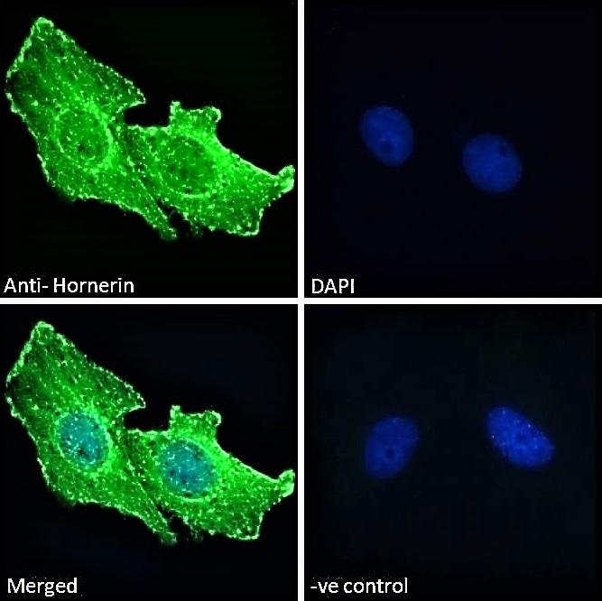 Immunocytochemistry/ Immunofluorescence - Anti-Hornerin antibody (ab78909)