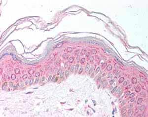 Immunohistochemistry (Formalin/PFA-fixed paraffin-embedded sections) - Anti-MDH1 antibody (ab78971)