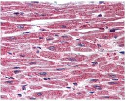 Immunohistochemistry (Formalin/PFA-fixed paraffin-embedded sections) - Anti-DUSP8 antibody (ab79034)