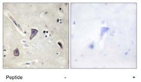 Immunohistochemistry (Formalin/PFA-fixed paraffin-embedded sections) - Anti-Kir6.2/BIR antibody (ab79171)