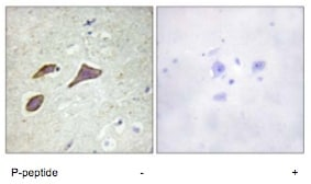 Immunohistochemistry (Formalin/PFA-fixed paraffin-embedded sections) - Anti-SCNN1B (phospho T615) antibody (ab79172)