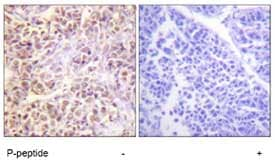 Immunohistochemistry (Formalin/PFA-fixed paraffin-embedded sections) - Anti-STK3 / MST-2 (phospho T180) + MSP/MST1 (phospho T183) antibody (ab79199)