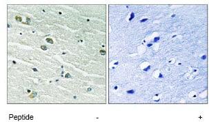 Immunohistochemistry (Formalin/PFA-fixed paraffin-embedded sections) - Anti-MER + SKY antibody (ab79223)