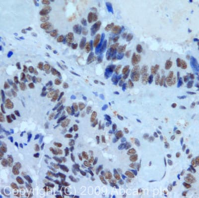 Immunohistochemistry (Formalin/PFA-fixed paraffin-embedded sections) - Anti-PRPF8/Prp8 antibody (ab79237)