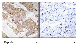 Immunohistochemistry (Formalin/PFA-fixed paraffin-embedded sections) - Anti-IL13 receptor alpha 1 antibody (ab79277)