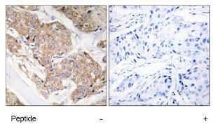 Immunohistochemistry (Formalin/PFA-fixed paraffin-embedded sections) - Anti-IL-13 receptor alpha 1 antibody (ab79277)