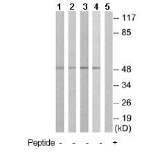 Western blot - Anti-IL-13 receptor alpha 1 antibody (ab79277)