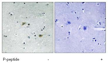 Immunohistochemistry (Formalin/PFA-fixed paraffin-embedded sections) - Anti-Src (phospho S75) antibody (ab79308)