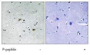 Immunohistochemistry (Formalin/PFA-fixed paraffin-embedded sections) - Anti-Src (phospho S75) antibody (ab79308)