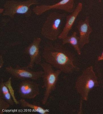 Immunocytochemistry/ Immunofluorescence - Anti-MED11 antibody (ab79321)
