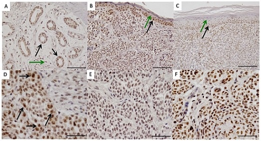Immunohistochemistry (Formalin/PFA-fixed paraffin-embedded sections) - Anti-Pax2 antibody [EP3251] (ab79389)