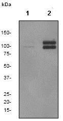 Western blot - Anti-delta 1 Catenin/CAS (phospho T916) antibody [EPR2383] (ab79400)