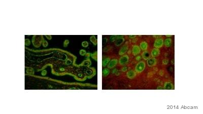 Immunohistochemistry (Formalin/PFA-fixed paraffin-embedded sections) - Anti-Estrogen Receptor alpha antibody [EPR703(2)] (ab79413)