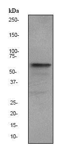 Western blot - Anti-Estrogen Receptor alpha antibody [EPR703(2)] (ab79413)