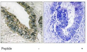 Immunohistochemistry (Formalin/PFA-fixed paraffin-embedded sections) - Anti-PERK antibody (ab79483)