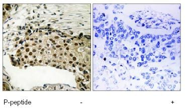 Immunohistochemistry (Formalin/PFA-fixed paraffin-embedded sections) - Anti-MSK1 (phospho S212) antibody (ab79499)