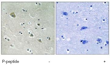 Immunohistochemistry (Formalin/PFA-fixed paraffin-embedded sections) - Anti-PAK1 (phospho S204) antibody (ab79503)