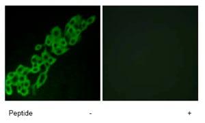 Immunocytochemistry/ Immunofluorescence - Anti-GPCR GPR32 antibody (ab79516)