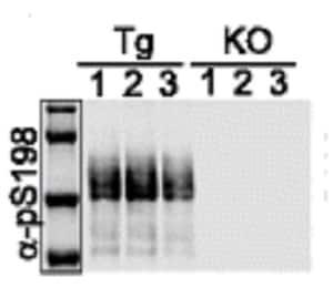 Western blot - Anti-Tau (phospho S198) antibody [EPR2400] (ab79540)