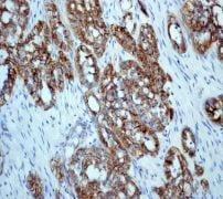 Immunohistochemistry (Formalin/PFA-fixed paraffin-embedded sections) - Anti-delta 1 Catenin/CAS (phospho S268) antibody [EPR2380] (ab79545)