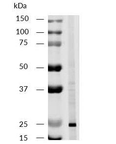 Western blot - Anti-CD81 antibody [M38] (ab79559)