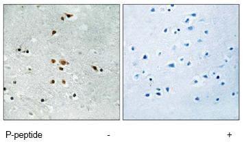 Immunohistochemistry (Formalin/PFA-fixed paraffin-embedded sections) - Anti-FER (phospho Y402) antibody (ab79573)