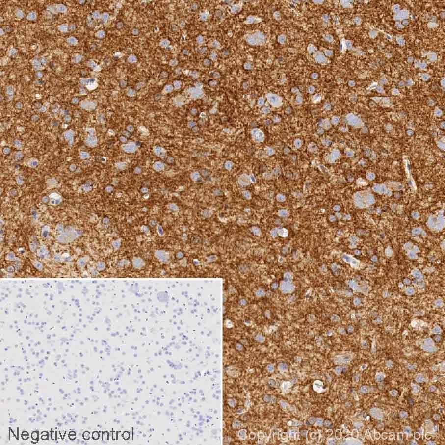 Immunohistochemistry (Formalin/PFA-fixed paraffin-embedded sections) - Anti-Adenosine Receptor A2a antibody [7F6-G5-A2] (ab79714)