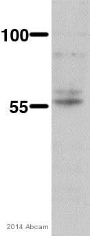Western blot - Anti-Cytochrome P450 26B antibody (ab79818)