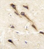 Immunohistochemistry (Formalin/PFA-fixed paraffin-embedded sections) - Anti-Cytochrome P450 26B antibody (ab79818)