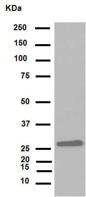 Western blot - Anti-HMGB1 antibody [EPR3507] (ab79823)