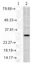 Western blot - Anti-Heme Oxygenase 1 antibody (ab79854)