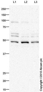 Western blot - Anti-NADPH oxidase 4 antibody (ab79971)