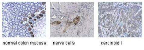 Immunohistochemistry (Formalin/PFA-fixed paraffin-embedded sections) - Anti-Synaptophysin antibody [SY38] (ab8049)