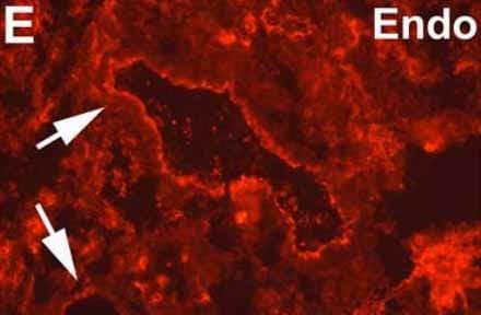 Immunohistochemistry (Frozen sections) - Anti-Endothelium antibody [EN4] (ab8087)