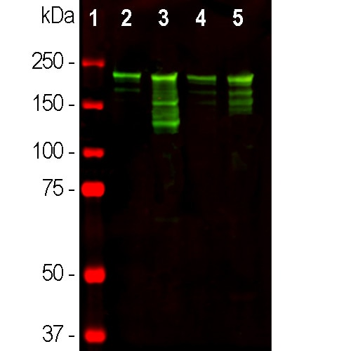 Western blot - Anti-Neurofilament heavy polypeptide antibody (ab8135)