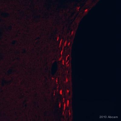 Immunohistochemistry (Formalin/PFA-fixed paraffin-embedded sections) - Anti-BrdU antibody [IIB5] (ab8152)