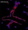 Immunohistochemistry (Formalin/PFA-fixed paraffin-embedded sections) - Anti-CD34 antibody [MEC 14.7] (ab8158)