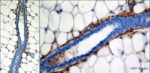 Immunohistochemistry (Formalin/PFA-fixed paraffin-embedded sections) - Anti-CD34 antibody [MEC 14.7] (ab8158)