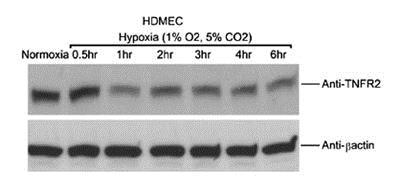 Western blot - Anti-TNF Receptor II antibody [MR2-1] (ab8161)