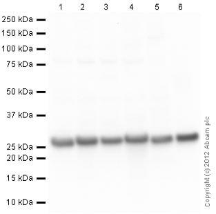 Western blot - Anti-PGP9.5 antibody [13C4 / I3C4] (ab8189)