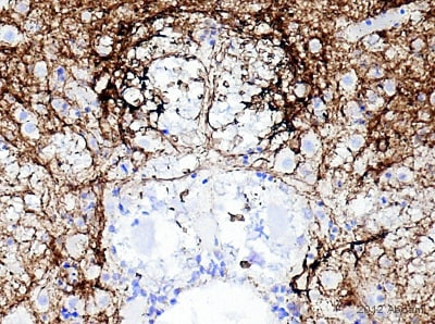 Immunohistochemistry (Formalin/PFA-fixed paraffin-embedded sections) - Anti-PGP9.5 antibody [13C4 / I3C4] (ab8189)