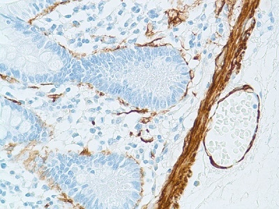 Immunohistochemistry (Formalin/PFA-fixed paraffin-embedded sections) - Anti-alpha smooth muscle Actin antibody [1A4], prediluted (ab8207)