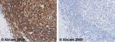 Immunohistochemistry (Formalin/PFA-fixed paraffin-embedded sections) - Anti-CD45 antibody [MEM-28] (ab8216)