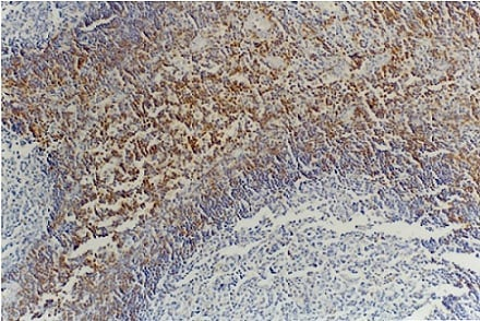 Immunohistochemistry (Formalin/PFA-fixed paraffin-embedded sections) - Anti-CD45RB antibody [MEM-55] (ab8218)
