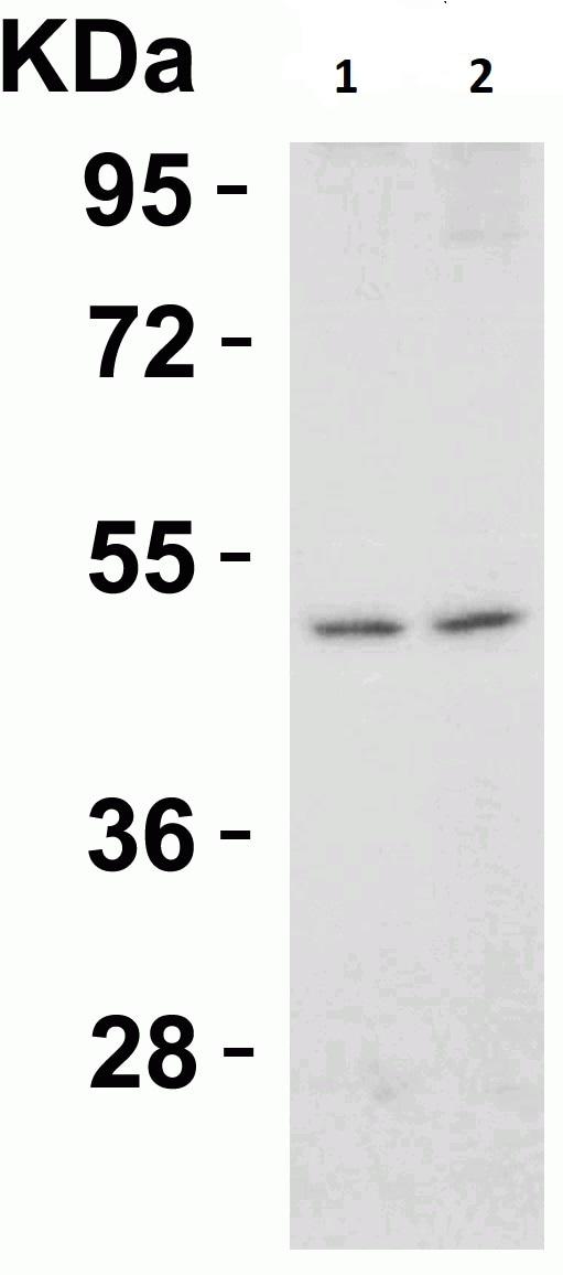 Western印迹-抗DR5抗体(AB8416)