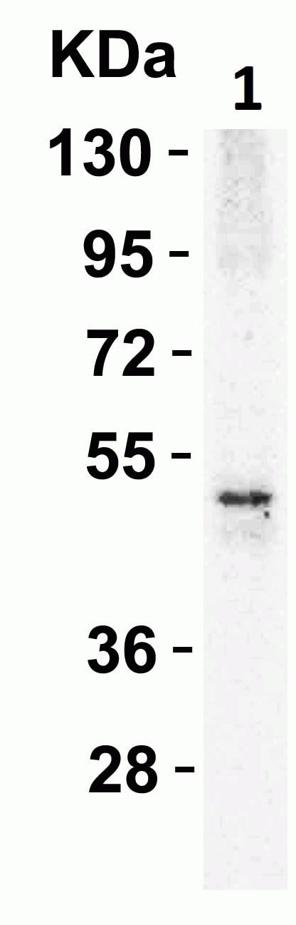 Western blot - Anti-DR5 antibody (ab8416)