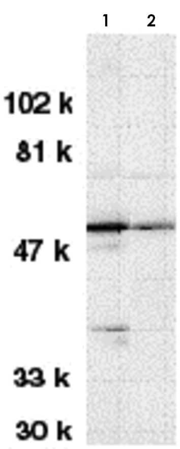 Western blot - Anti-STK17A antibody (ab8418)