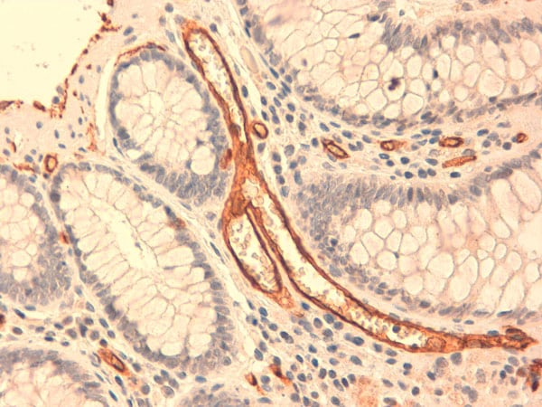 Immunohistochemistry (Formalin/PFA-fixed paraffin-embedded sections) - Anti-CD34 antibody [QBEND-10] (ab8536)